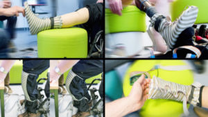 Smart Sock in Prosthetic Limbs adds Sensations
