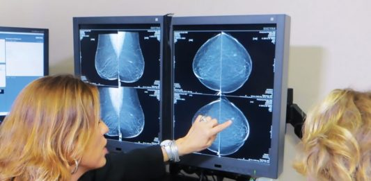 female's future chance of breast cancer